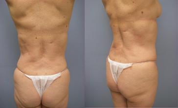 26-Laser-Assisted-Liposuction-After.jpg