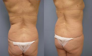 26-Laser-Assisted-Liposuction-Before.jpg