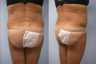 27-Laser-Assisted-Liposuction-After.jpg