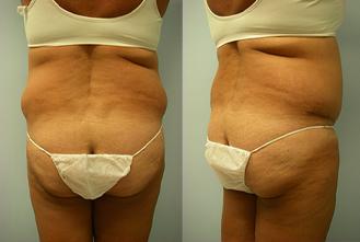27-Laser-Assisted-Liposuction-Before.jpg