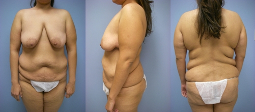 1-Contouring-After-Weight-Loss-Plastic-Surgery-Before.jpg