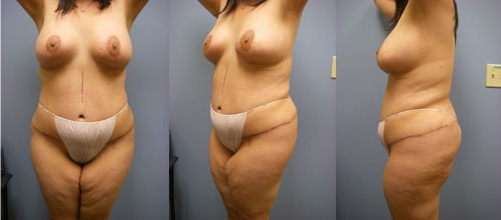 2-Contouring-After-Weight-Loss-Plastic-Surgery-After.jpg