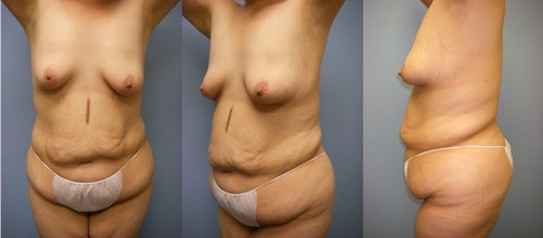 2-Contouring-After-Weight-Loss-Plastic-Surgery-Before.jpg
