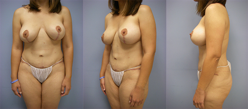 3-Contouring-After-Weight-Loss-Plastic-Surgery-After.jpg