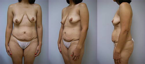 3-Contouring-After-Weight-Loss-Plastic-Surgery-Before.jpg