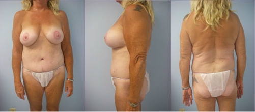 5-Contouring-After-Weight-Loss-Plastic-Surgery-After.jpg