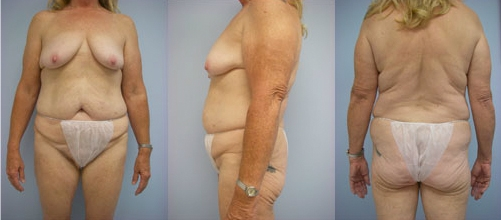 5-Contouring-After-Weight-Loss-Plastic-Surgery-Before.jpg