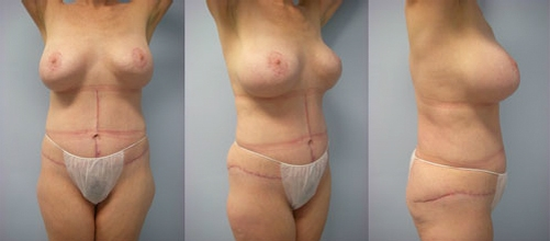 6-Contouring-After-Weight-Loss-Plastic-Surgery-After.jpg