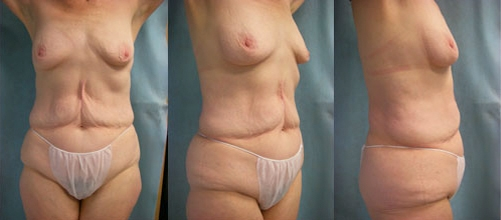 6-Contouring-After-Weight-Loss-Plastic-Surgery-Before.jpg