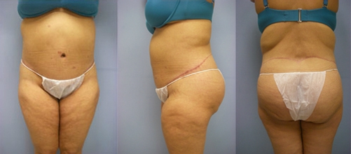 7-Contouring-After-Weight-Loss-Plastic-Surgery-After.jpg