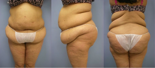 7-Contouring-After-Weight-Loss-Plastic-Surgery-Before.jpg