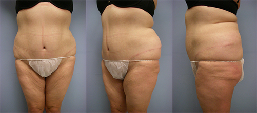 8-Contouring-After-Weight-Loss-Plastic-Surgery-After.jpg