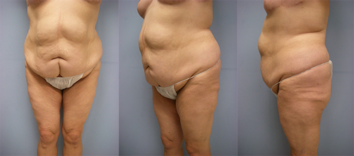 8-Contouring-After-Weight-Loss-Plastic-Surgery-Before.jpg