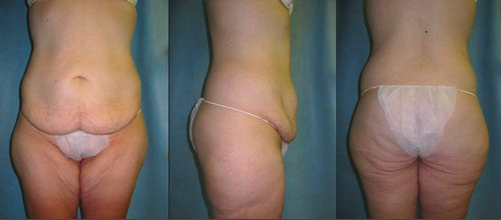 9-Contouring-After-Weight-Loss-Plastic-Surgery-Before.jpg