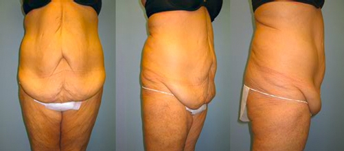 10-Contouring-After-Weight-Loss-Plastic-Surgery-Before.jpg