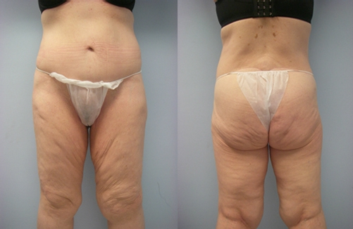 11-Contouring-After-Weight-Loss-Plastic-Surgery-Before.jpg