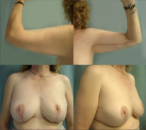13-Contouring-After-Weight-Loss-Plastic-Surgery-After.jpg