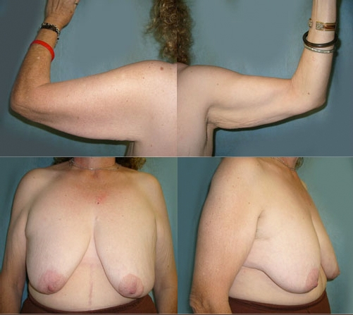 13-Contouring-After-Weight-Loss-Plastic-Surgery-Before.jpg
