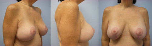 14-Contouring-After-Weight-Loss-Plastic-Surgery-After.jpg