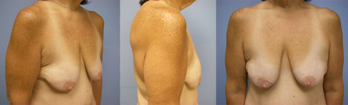 14-Contouring-After-Weight-Loss-Plastic-Surgery-Before.jpg