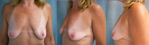 15-Contouring-After-Weight-Loss-Plastic-Surgery-Before.jpg