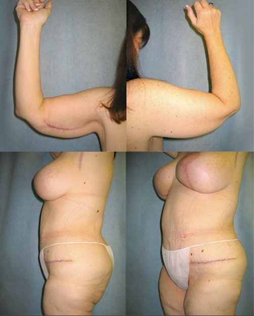 17-Contouring-After-Weight-Loss-Plastic-Surgery-After.jpg