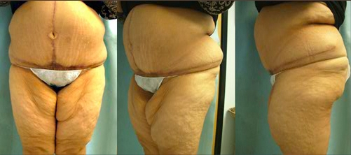 18-Contouring-After-Weight-Loss-Plastic-Surgery-After.jpg