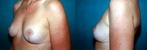1-Breast-Lift-After.jpg