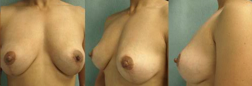 2-Breast-Lift-After.jpg