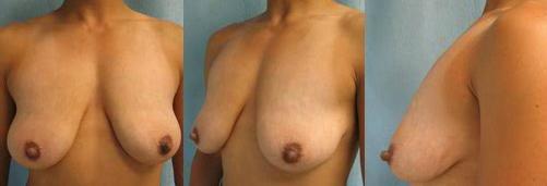 2-Breast-Lift-Before.jpg
