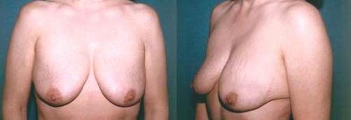 3-Breast-Lift-Before.jpg