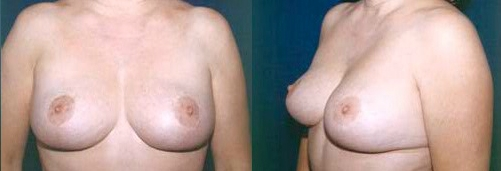 3-Breast-Lift-After.jpg
