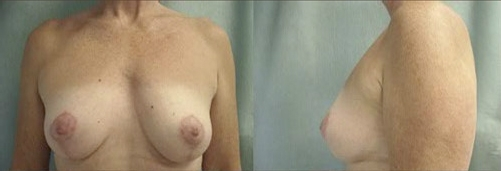 4-Breast-Lift-After.jpg