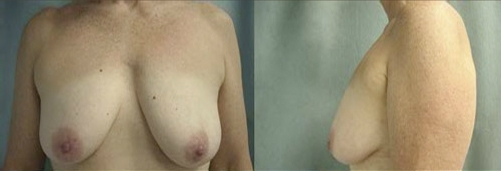4-Breast-Lift-Before.jpg