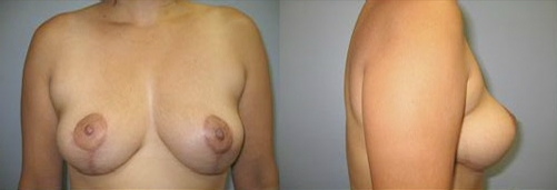 5-Breast-Lift-After.jpg