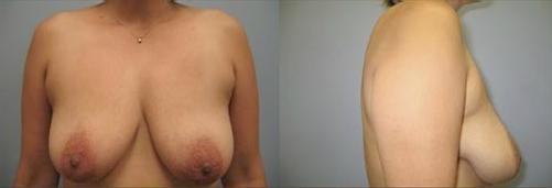 5-Breast-Lift-Before.jpg
