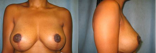 6-Breast-Lift-After.jpg