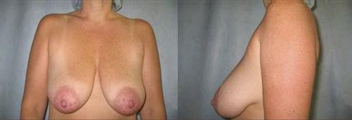7-Breast-Lift-Before.jpg
