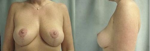 7-Breast-Lift-After.jpg