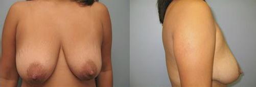 8-Breast-Lift-Before.jpg