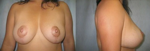 8-Breast-Lift-After.jpg
