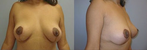 9-Breast-Lift-After.jpg