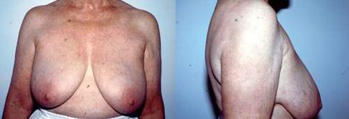 10-Breast-Lift-Before.jpg