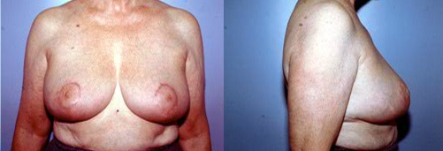 10-Breast-Lift-After.jpg