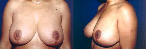 11-Breast-Lift-After.jpg