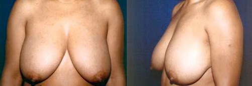 11-Breast-Lift-Before.jpg