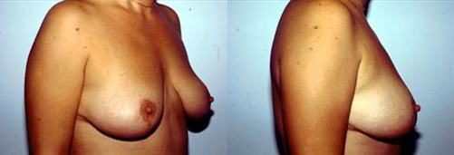 12-Breast-Lift-After.jpg