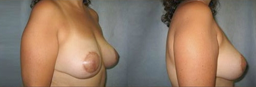 13-Breast-Lift-After.jpg