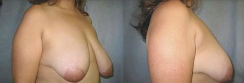 13-Breast-Lift-Before.jpg