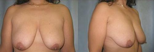 14-Breast-Lift-Before.jpg